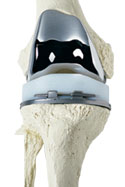 artroplastia de rodilla en cancun